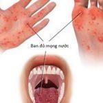 Những thói quen vệ sinh sai cách dẫn đến một số bệnh dễ mắc phải